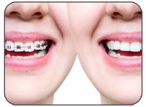 Malocclusion-Orthodontic-Relapse