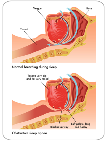 Obstructive Sleep Apnea Breathing Diagram