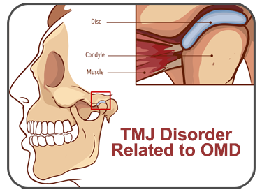 TMJ Disorders Related to OMDs