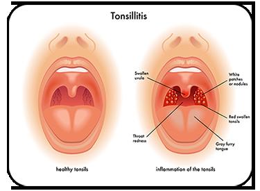 Tonsillitis can cause Snoring